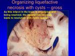 organizing liquefactive necrosis with cysts gross