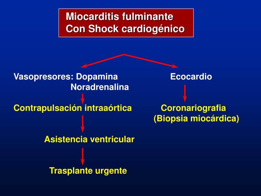 Miocarditis fulminante
