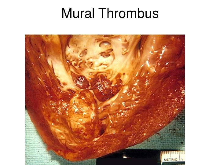 Ppt hemodynamic disorders thrombosis and shock for Mural thrombi