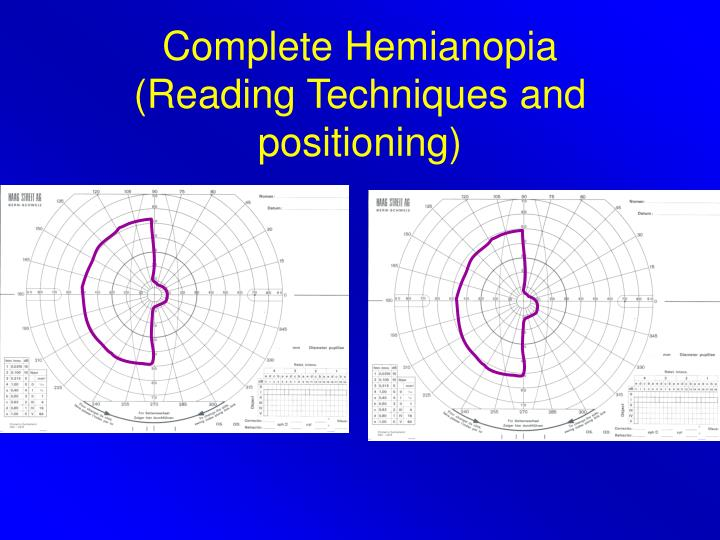 Complete Hemianopia
