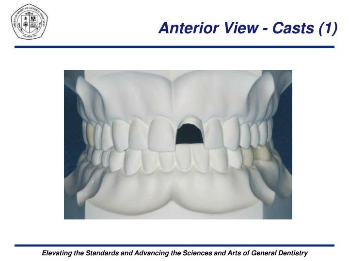 Anterior View - Casts (1)