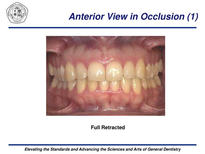 Anterior View in Occlusion (1)