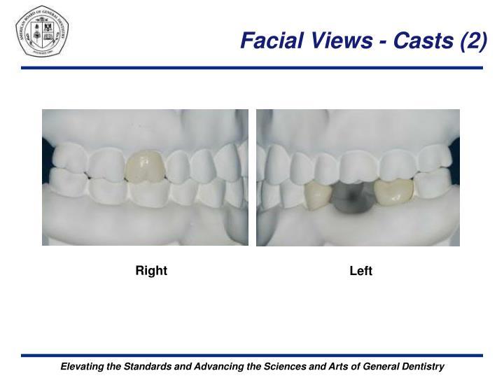 Facial Views - Casts (2)
