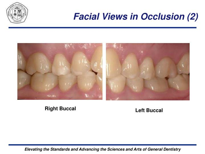 Facial Views in Occlusion (2)