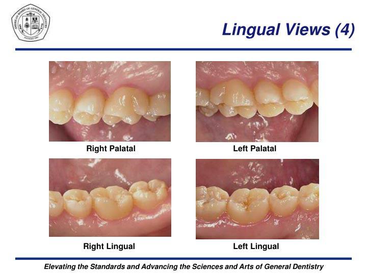 Lingual Views (4)