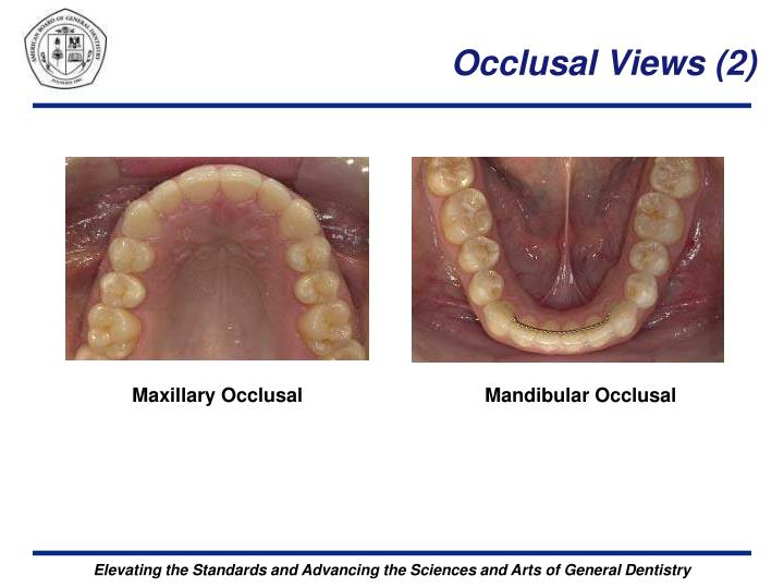 Occlusal Views (2)