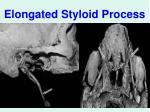 elongated styloid process
