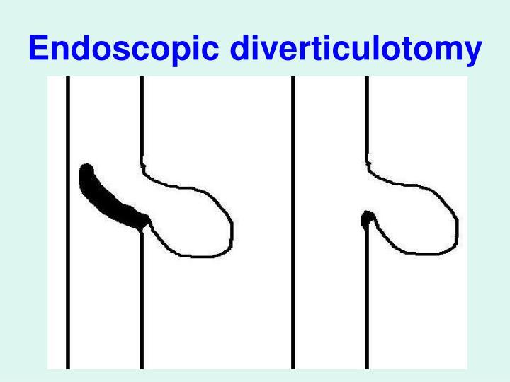 Endoscopic diverticulotomy