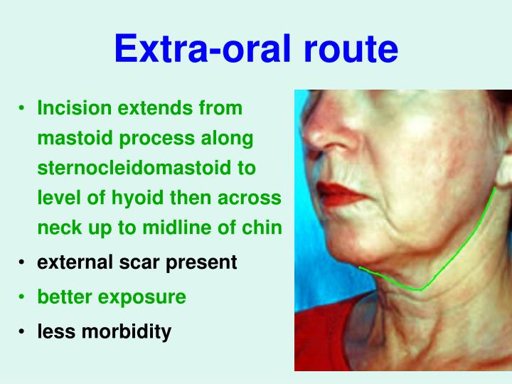 Extra-oral route
