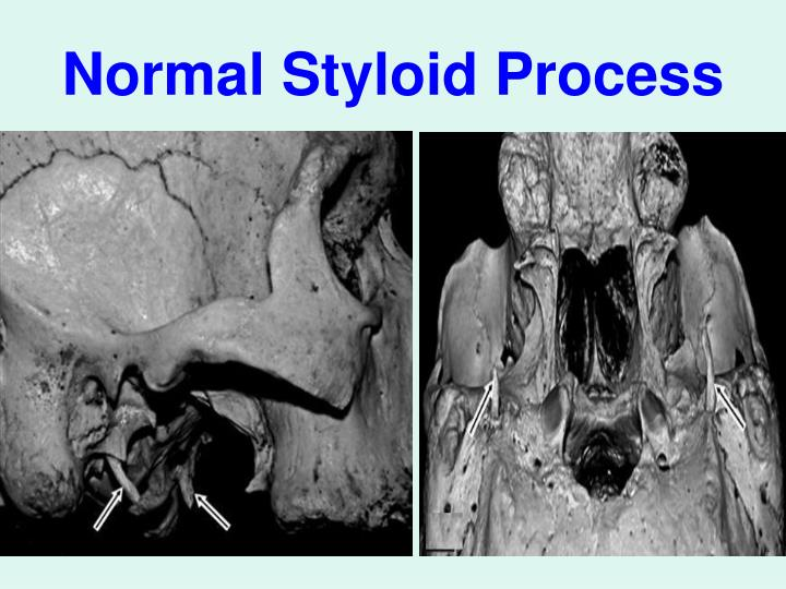 Normal Styloid Process