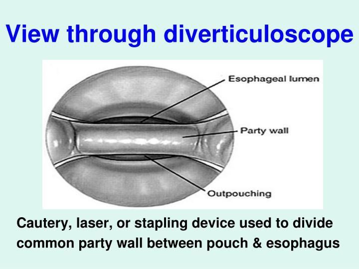 View through diverticuloscope