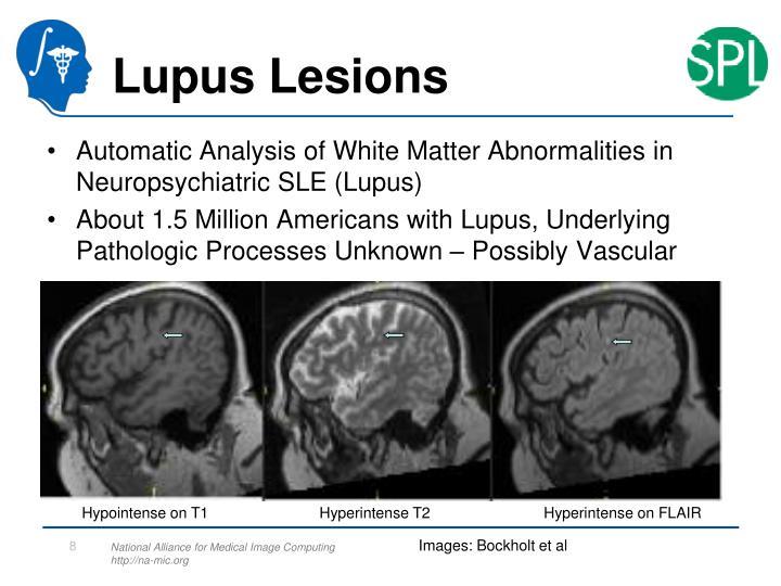 Lupus Lesions