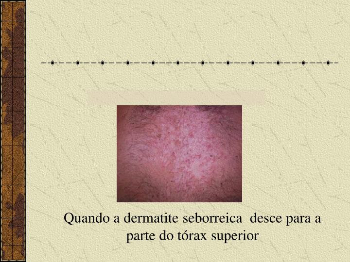 Quando a dermatite seborreica  desce para a parte do tórax superior