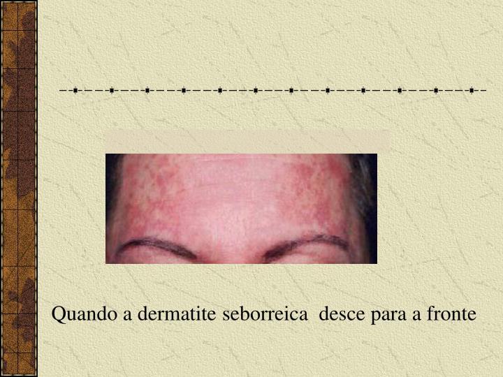 Quando a dermatite seborreica  desce para a fronte
