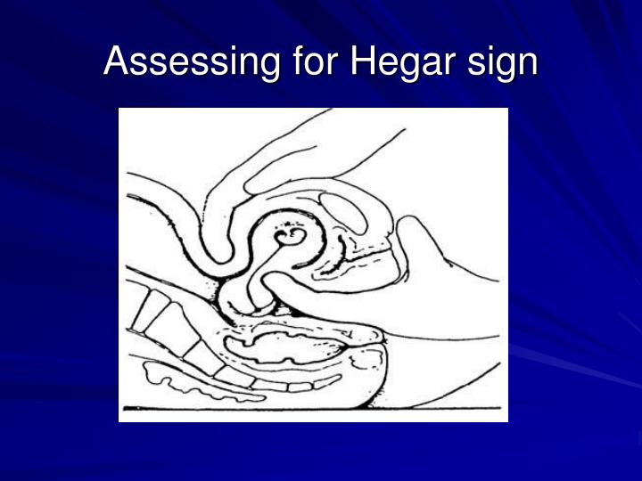 Assessing for Hegar sign