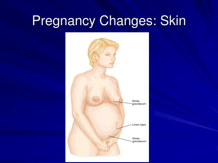 Pregnancy Changes: Skin