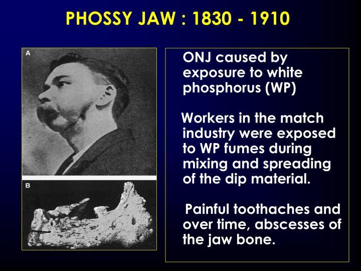 PHOSSY JAW : 1830 - 1910