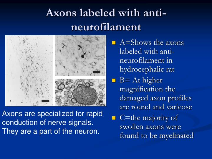 Axons labeled with anti-neurofilament