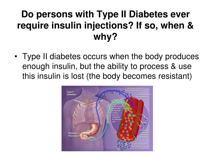 Do persons with Type II Diabetes ever require insulin injections? If so, when & why?