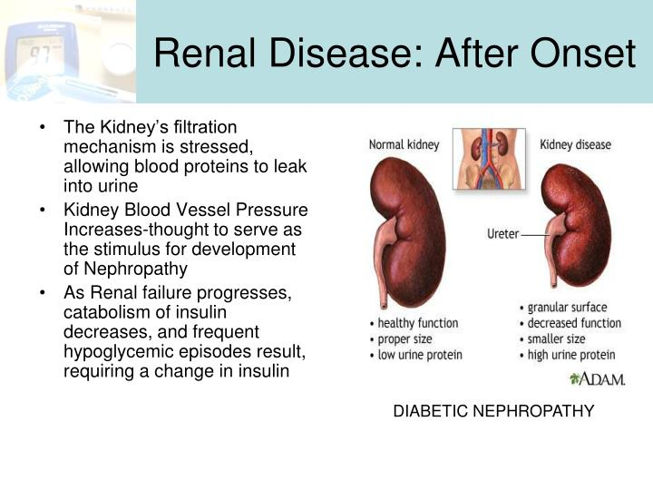 Renal Disease: After Onset