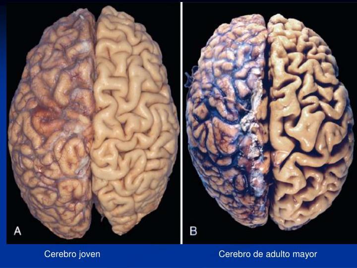 Cerebro joven