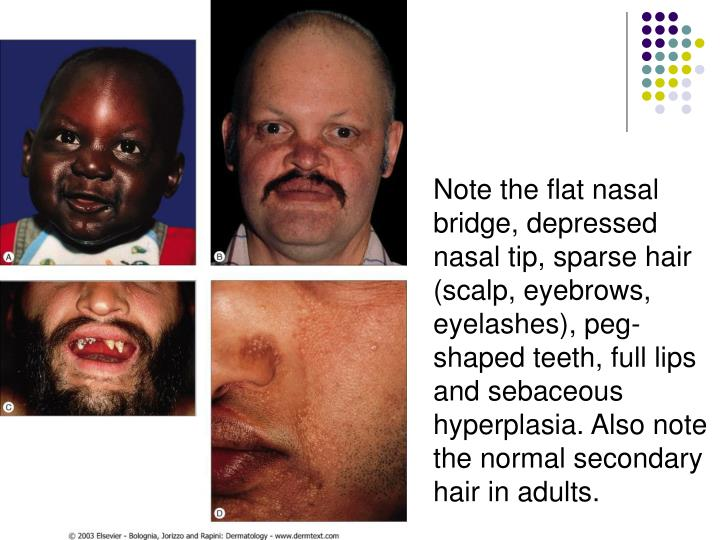 Note the flat nasal bridge, depressed nasal tip, sparse hair (scalp, eyebrows, eyelashes), peg-shaped teeth, full lips and sebaceous hyperplasia. Also note the normal secondary hair in adults.