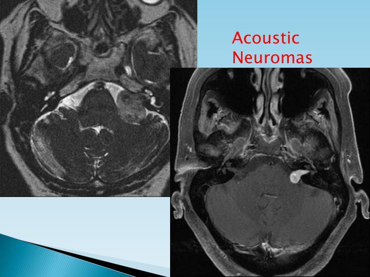 Acoustic Neuromas