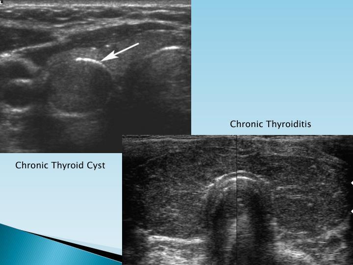 Chronic Thyroiditis