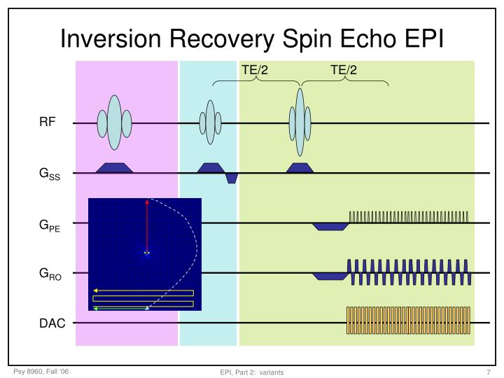 Inversion Recovery Spin Echo EPI