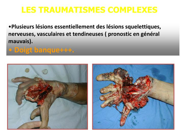 LES TRAUMATISMES COMPLEXES
