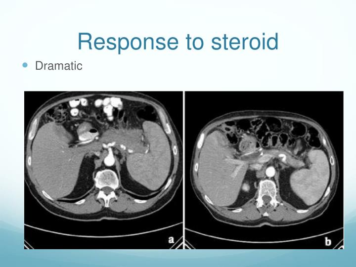Response to steroid