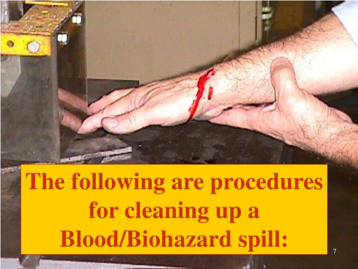 The following are procedures for cleaning up a