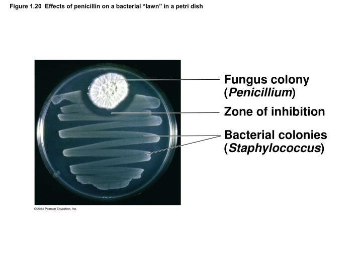 """Figure 1.20  Effects of penicillin on a bacterial """"lawn"""" in a petri dish"""