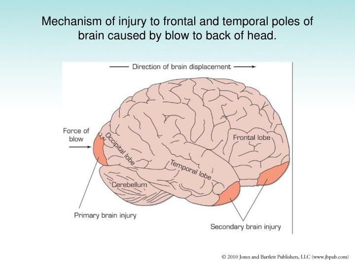 Mechanism of injury to frontal and temporal poles of brain caused by blow to back of head.