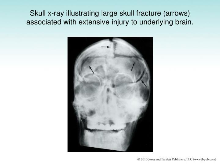 Skull x-ray illustrating large skull fracture (arrows) associated with extensive injury to underlying brain.