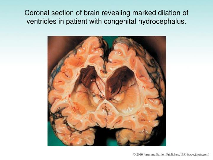 Coronal section of brain revealing marked dilation of ventricles in patient with congenital hydrocephalus.