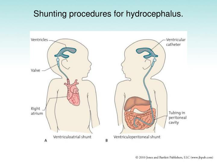 Shunting procedures for hydrocephalus.