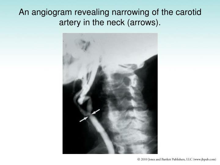 An angiogram revealing narrowing of the carotid artery in the neck (arrows).