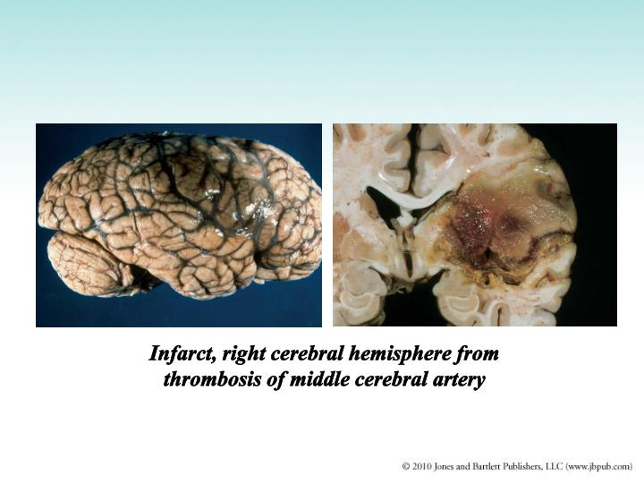 Infarct, right cerebral hemisphere from thrombosis of middle cerebral artery