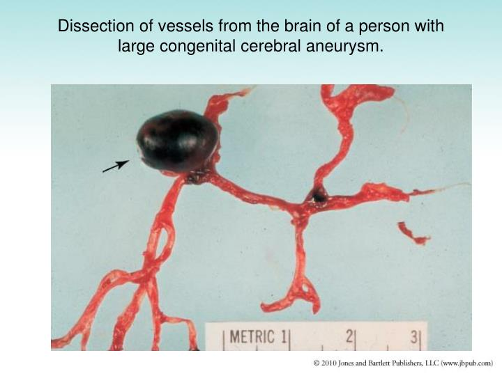 Dissection of vessels from the brain of a person with large congenital cerebral aneurysm.