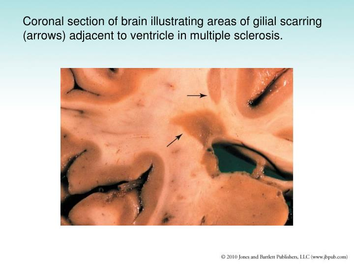 Coronal section of brain illustrating areas of gilial scarring (arrows) adjacent to ventricle in multiple sclerosis.