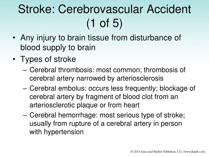 Stroke: Cerebrovascular Accident (1 of 5)