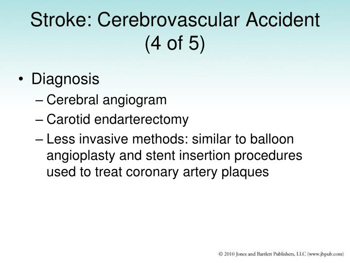 Stroke: Cerebrovascular Accident (4 of 5)