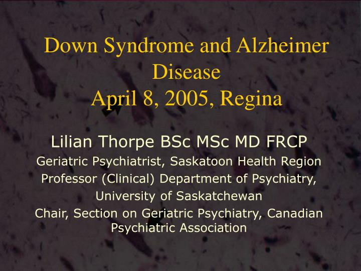 down syndrome and alzheimer disease april 8 2005 regina