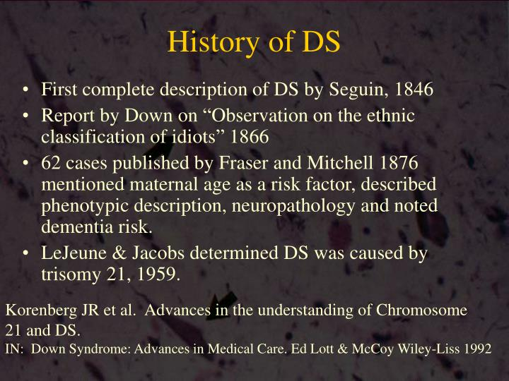 History of DS