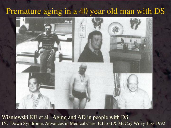 Premature aging in a 40 year old man with DS