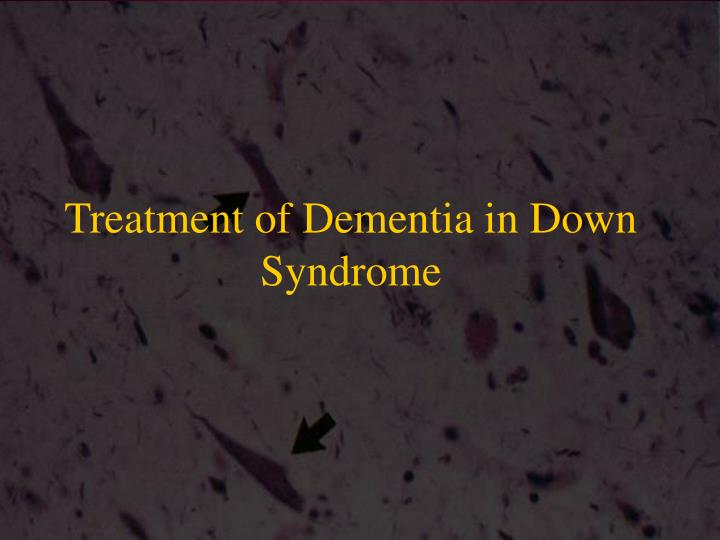 Treatment of Dementia in Down Syndrome