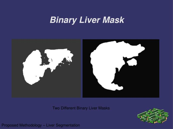 Binary Liver Mask