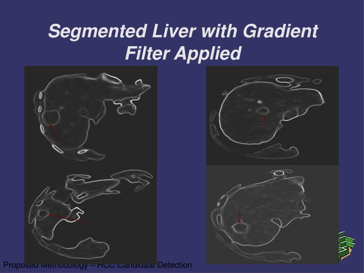 Segmented Liver with Gradient Filter Applied