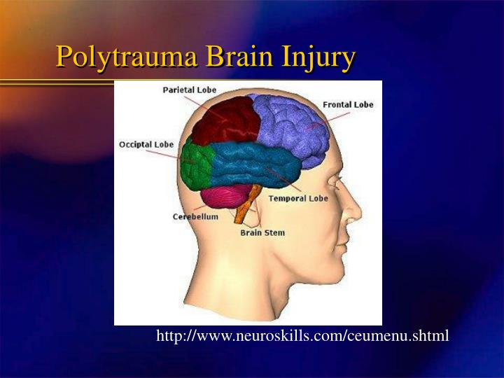 Polytrauma Brain Injury